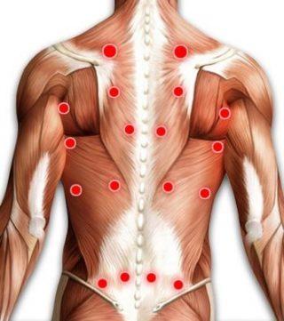 Bild zeigt den Rücken eines Oberkörpers mit Muskelsträngen und Triggerpunkten. Dient zur Visualisierung der Triggerpunkte, um zu zeigen wo sie liegen könnten.